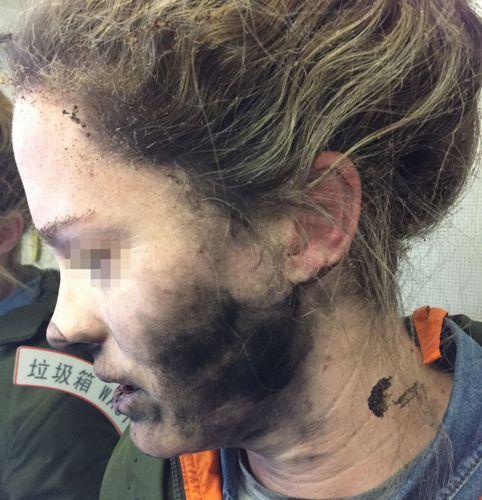 ヘッドホンの発火でやけどを負った女性
