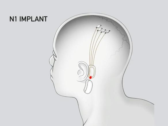 脳とマシンがつながる未来へ--イーロン・マスク氏が語ったNeuralinkの取り組み