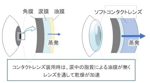 Eyes dry when wearing contact lenses [Source: Tohoku University]